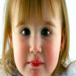 Cold Sores in Toddlers