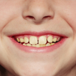 My Child's Teeth Are Yellow